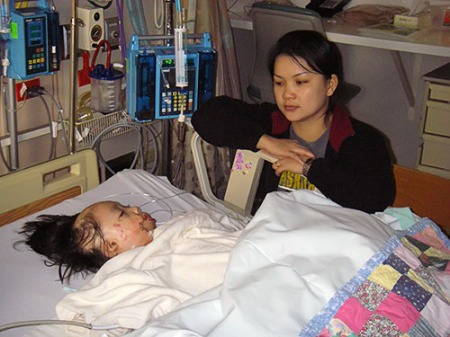 Boun Lod with her mother after her second surgery.